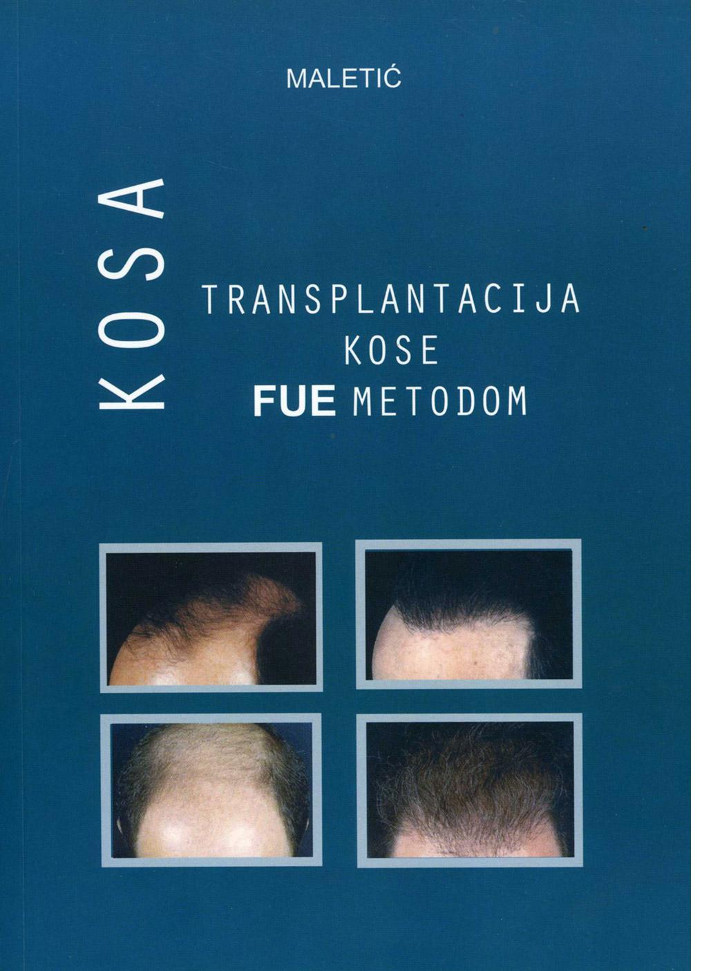 Transplantacija kose FUE metodom - Poliklinika Maletić