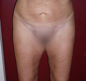 Poliklinik Maletić: Brustvergrößerung, Venenchirurgie, Haartransplantation, Fettabsaugung