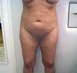 Abdominoplastika: prije tretmana