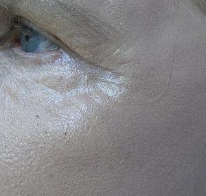 Duboki kemijski piling oka - poslije tretmana