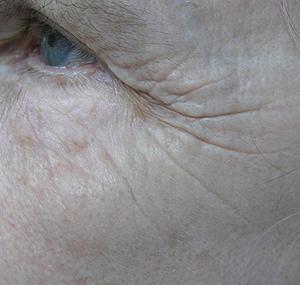 Duboki kemijski piling oka - prije tretmana