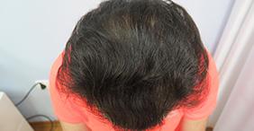 presađivanje kose, FUE metoda, transplantacija kose, ispadanje kose
