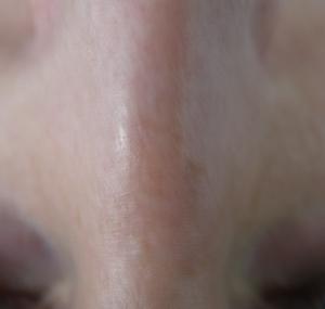 Lasersko uklanjanje kapilara na nosu: poslije tretmana