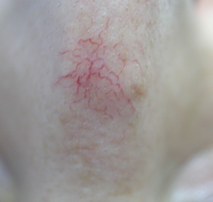 Lasersko uklanjanje kapilara na nosu: prije tretmana