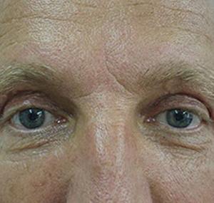 Blefaroplastika: poslije tretmana