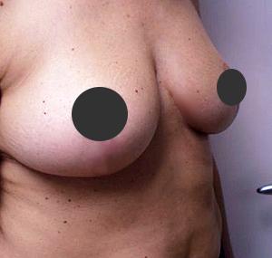 Podizanje grudi: poslije tretmana