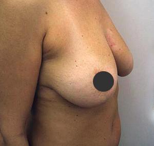 Podizanje grudi: prije tretmana