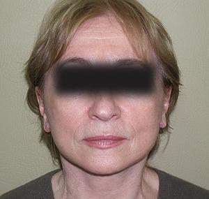 Facelifting: poslije tretmana