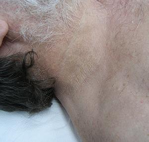 Lasersko uklanjanje fibroma - poslije