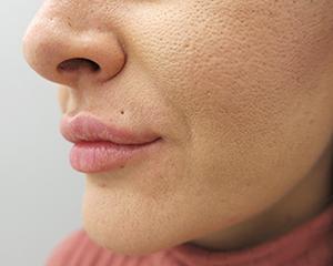 Filer usana: poslije tretmana