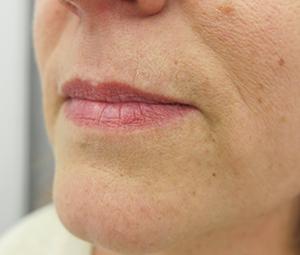 Filer usana: prije tretmana