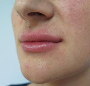 Poliklinika Maletić: Povećanje grudi,operacija vena, presađivanje kose, liposukcija