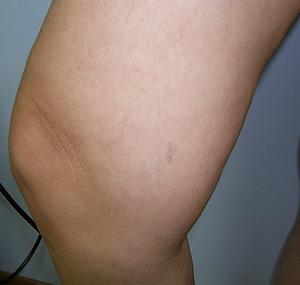 Lasersko uklanjanje kapilara na koljenu: poslije tretmana