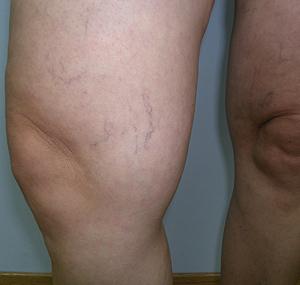 Lasersko uklanjanje kapilara na koljenu: prije tretmana