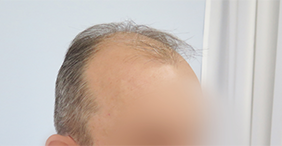 Polyclinic Maletić: Breast augmentation, vein surgery, hair transplantation, liposuction