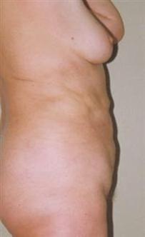 Dr. Maletić: Liposukcija