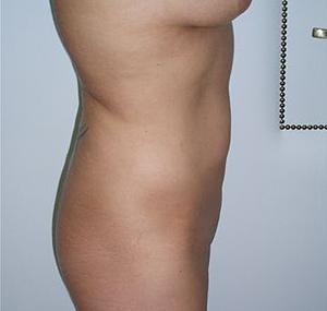 Poliklinika Maletić: Povečanje prsi, venska kirurgija, transplantacija las, liposukcija