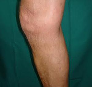 Lasersko uklanjanje vena: poslije tretmana
