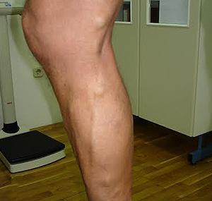 Polyclinic Maletić: Breast augmentation, vein surgery, hair transplantation, liposuction