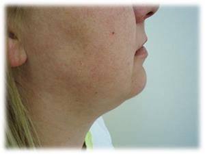 Laserom potpomognuta liposukcija podbratka: prije tretmana