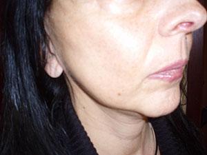 Laserom potpomognuta liposukcija podbratka: poslije tretmana