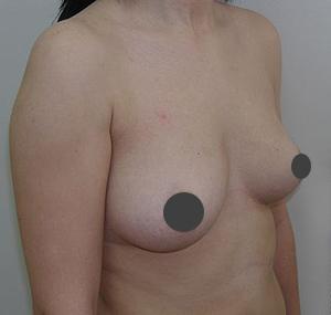 Povećanje grudi masnim tkivom - Lipofiling