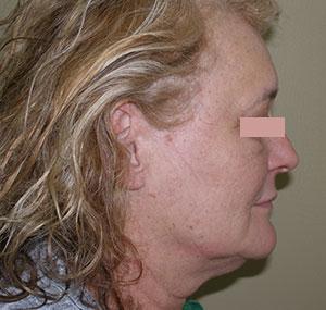 Facelifting: prije tretmana