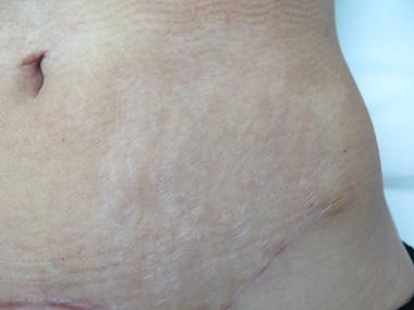 Lasersko uklanjanje strija: poslije tretmana