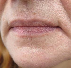 Estetska kirurgija usana: prije tretmana