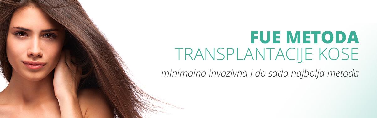 FUE metoda transplantacije kose